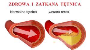 zdrowa i zwężona tętnica