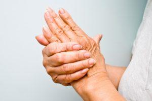 opuchnięte stawy w dłoni