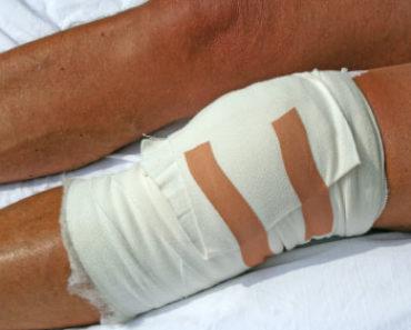 obandażowane kolano