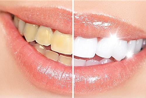 wybielanie zębów olejem