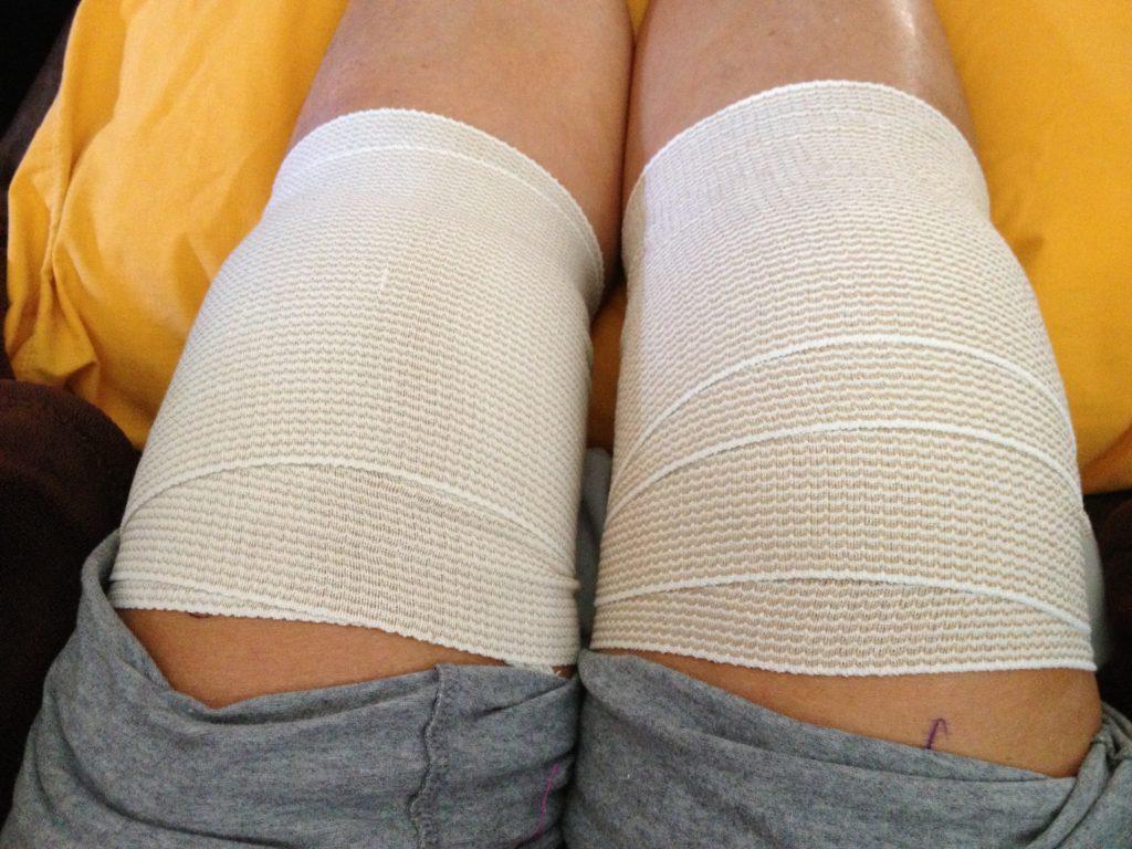 zabandażowane kolana