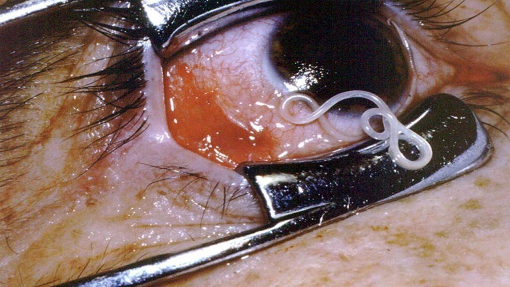tasiemiec w ludzkim oku