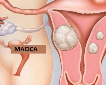 obraz mięśniaków macicy